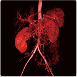 Abdominal aorta and arteries