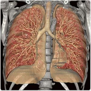 3D Rendered bronchi