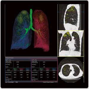 Lung Volume Ananlysis
