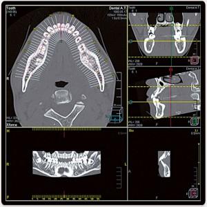 Dental Analysis