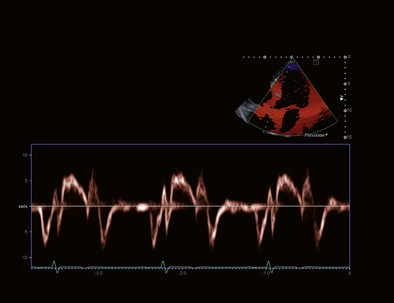 aus_PPT_i900_Cardiac_S36_RZ_RGB
